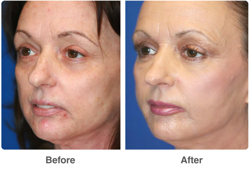 After before facial laser surgery images 146