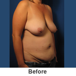 Abdominoplasty - Before - Patient 1a