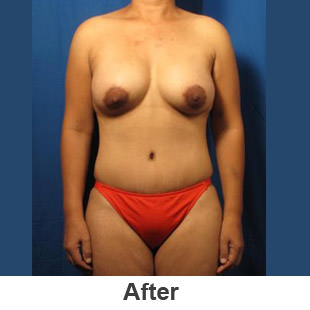 Breast Augmentation - After - Patient 1a