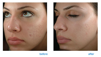 Corona CO2 Laser Skin Resurfacing